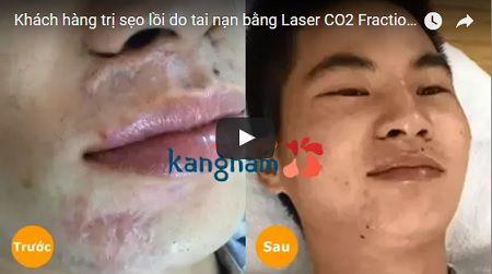 » [CLICK xem] Toàn bộ quy trình điều trị sẹo bằng laser co2 fractional