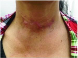 Làm sao để phòng ngừa sẹo sau khi phẫu thuật?