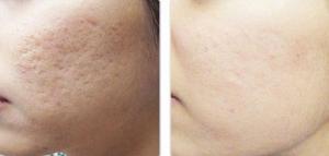Điều trị sẹo rỗ và sẹo thâm bằng cách nào hiệu quả nhanh chóng?
