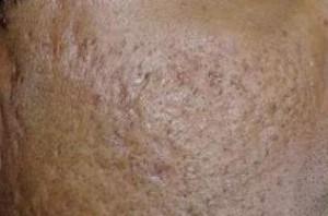 Phương pháp nào điều trị sẹo rỗ do mụn trứng cá bọc để lại?