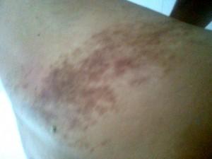 Sẹo thâm đen ở chân do bị ghẻ có chữa khỏi được không?
