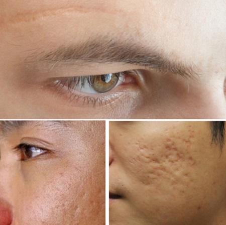 Công nghệ trị sẹo lõm, sẹo rỗ cần đáp ứng 3 ưu điểm 1