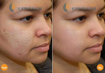 Công nghệ trị sẹo lõm, sẹo rỗ cần đáp ứng 3 ưu điểm 5