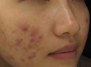 Vùng da bị sẹo thâm có được tái tạo lại sau điều trị?