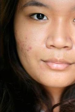 Hiểu về sẹo thâm để điều trị đúng cách và hiệu quả 4