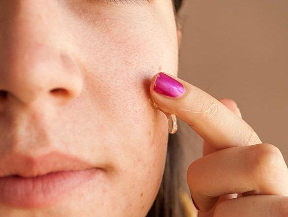 Mùa khô hanh chăm sóc làn da bị sẹo mụn thế nào? 2