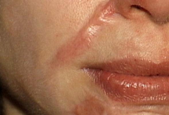 Loại bỏ sẹo lồi: không nóng vội và cần đúng cách 21