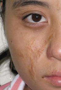 Loại bỏ sẹo lồi: không nóng vội và cần đúng cách 3