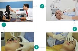 Trải nghiệm công nghệ trị sẹo rỗ hiện đại – Cấy da siêu vi điểm