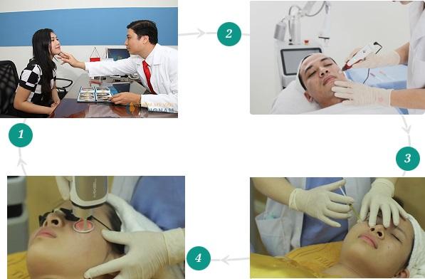 Trải nghiệm công nghệ trị sẹo rỗ hiện đại – Cấy da siêu vi điểm 1