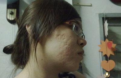 Triệt tiêu sẹo mụn không khó với công nghệ kim lăn 11