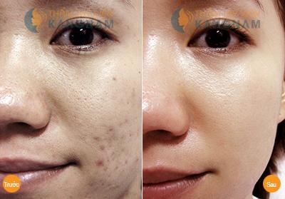 massage tri seo tham voi tinh dau o liu 6 Công nghệ chữa sẹo thâm tận gốc   Peeling