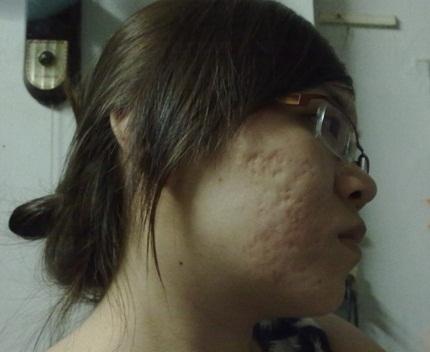 Tự tin đón Tết với làn da sáng mịn, không còn dấu vết của sẹo 1