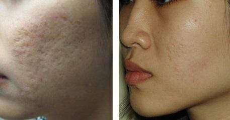 Đặc trị sẹo sẹo lõm, sẹo rỗ dễ dàng với công nghệ cấy da siêu vi điểm 1