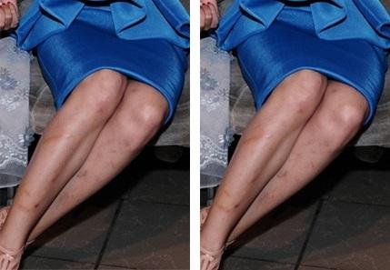 Làm mờ sẹo thâm ở chân với rau má - Tự tin diện váy 1