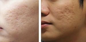 Mách bạn 4 cách trị sẹo lõm tự nhiên được nhiều người áp dụng