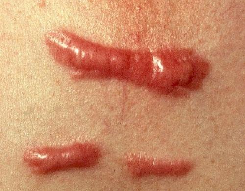 Dùng thuốc chữa sẹo lồi trong các trường hợp nào3