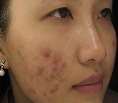 Kem mờ sẹo thâm có thể lột tẩy, gây hại da1