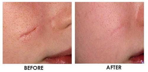 Nghiên cứu cách làm hết sẹo của các thuốc trị sẹo lõm4