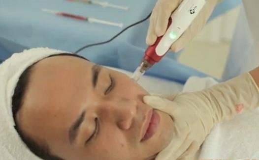 Tại sao nên điều trị sẹo lõm ở mặt lâu năm bằng công nghệ cấy da siêu vi điểm2