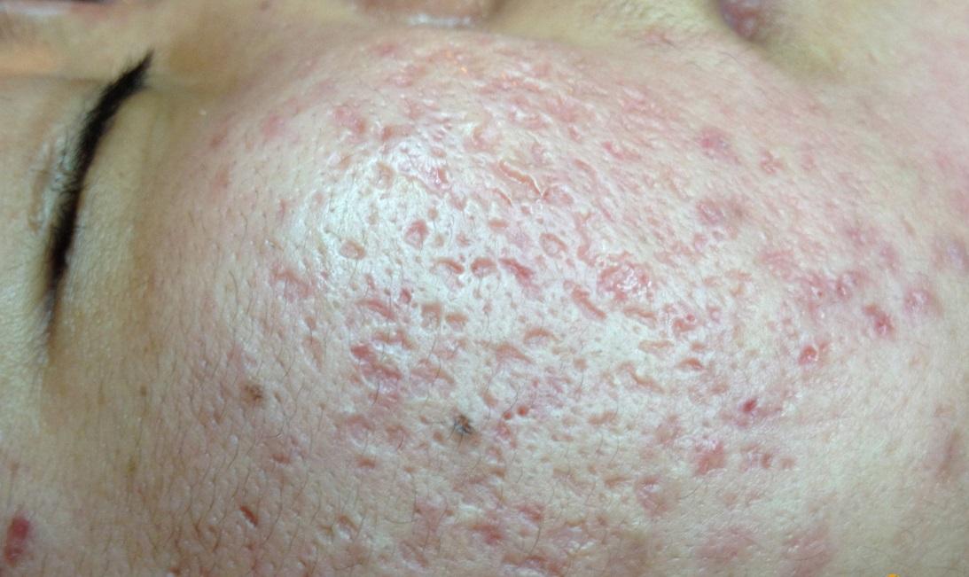 Update trào lưu trị sẹo lõm mới - Công nghệ cấy da siêu vi điểm3