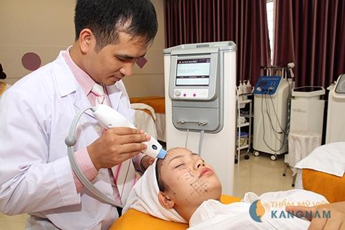 Update trào lưu trị sẹo lõm mới - Công nghệ cấy da siêu vi điểm1