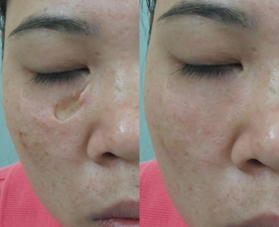 Update trào lưu trị sẹo lõm mới - Công nghệ cấy da siêu vi điểm4