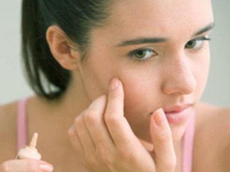 Bật mí cách trị sẹo và vết thâm sau mụn hiệu quả1