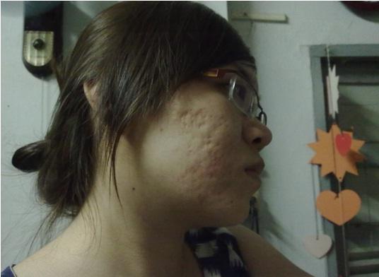 Dùng kem trị sẹo lõm có thực sự hiệu quả1