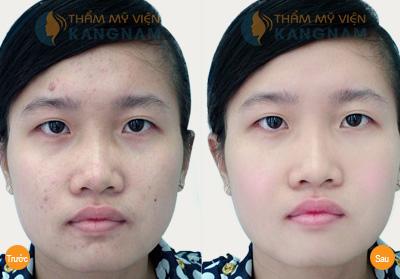Có cách trị sẹo do mụn nhanh - hiệu quả triệt để nhất không? 3
