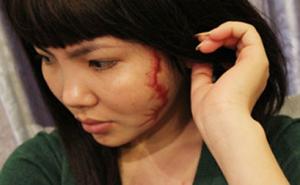 Phẫu thuật xóa sẹo lồi áp dụng cho trường hợp nào?