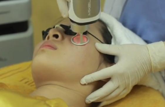 Phẫu thuật xóa sẹo lồi áp dụng cho những trường hợp nào3