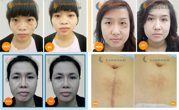 Phẫu thuật xóa sẹo lồi áp dụng cho những trường hợp nào4