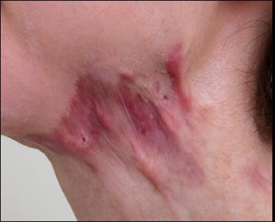 Trị sẹo lồi sau phẫu thuật bằng cách nào hiệu quả và an toàn1