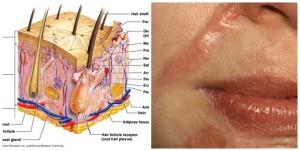Trị sẹo lồi sau phẫu thuật bằng cách nào hiệu quả và an toàn