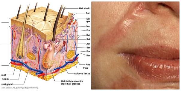 Trị sẹo lồi sau phẫu thuật bằng cách nào hiệu quả và an toàn2