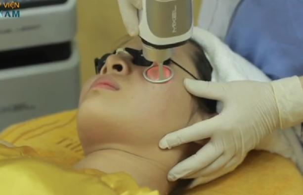 Trị sẹo lồi sau phẫu thuật bằng cách nào hiệu quả và an toàn4