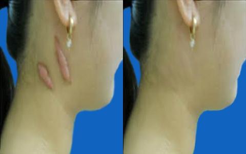 Tư vấn chuyên gia: Cách chữa trị sẹo lồi hiệu quả6