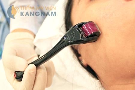 Tư vấn điều trị sẹo mụn lâu năm bằng công nghệ kim lăn2