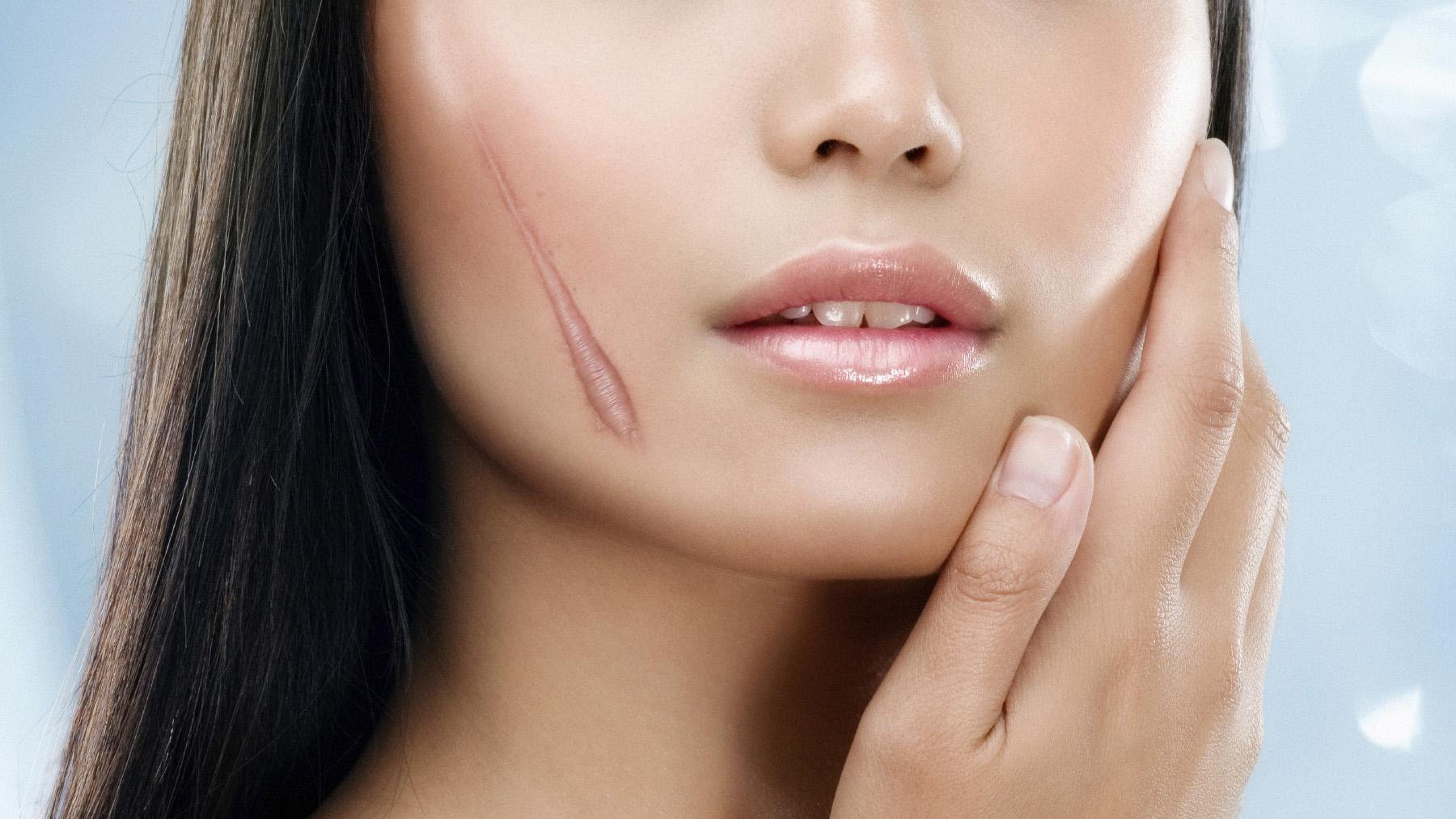 Bất ngờ với cách trị sẹo lồi lâu năm hiệu quả, không đau rát1