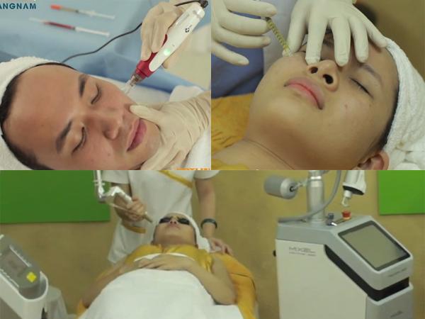 Trị sẹo lõm bằng cấy da siêu vi điểm
