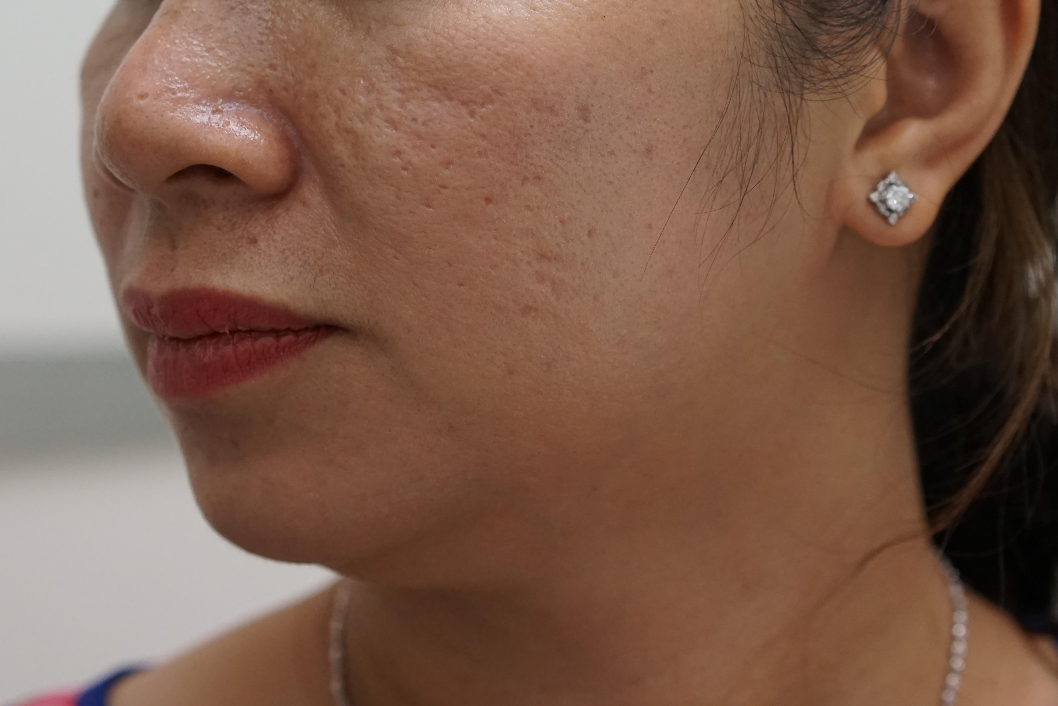Khám phá cách trị rỗ mặt do thủy đậu không đau rát1