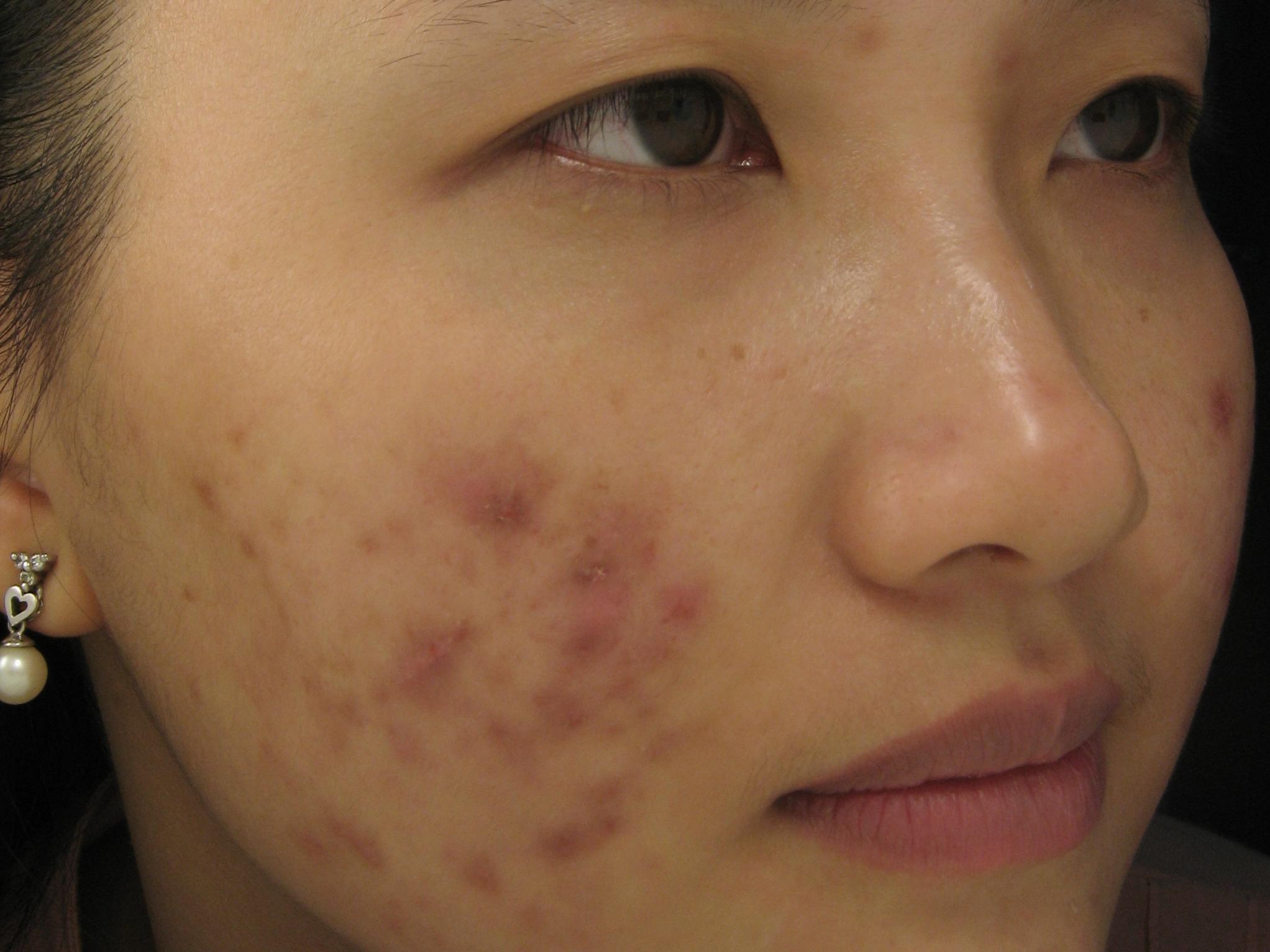 Có cách trị sẹo do mụn nhanh - hiệu quả triệt để nhất không? 5