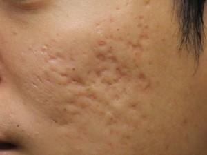 4 lý do bạn nên lựa chọn trị sẹo lõm bằng cấy da siêu vi điểm