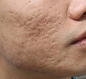 """""""Sốc"""" với cách trị sẹo lõm lâu năm chỉ với 1 đến 2 lần điều trị"""
