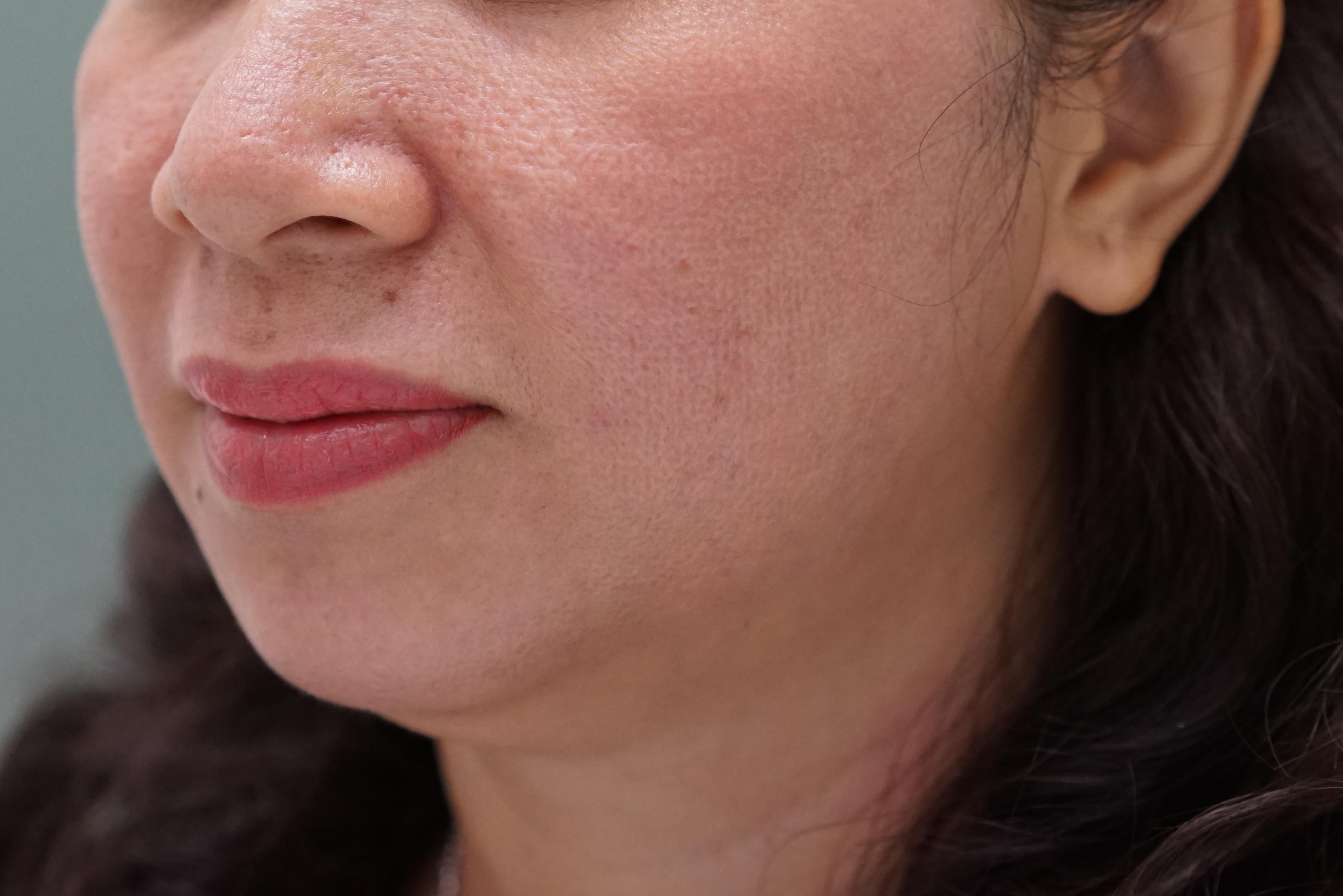 """3 cách chữa sẹo rỗ trên mặt """"cực"""" hiệu quả tại nhà 1"""