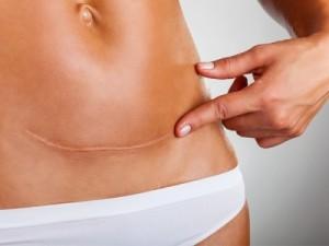 Trị sẹo lồi Laser CO2 Fractional có ảnh hưởng đến vùng da xung quanh?
