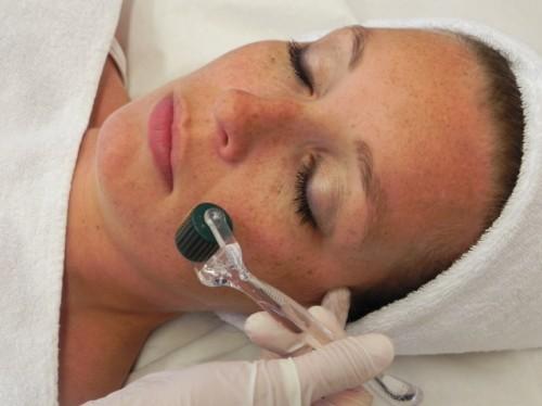 Trị sẹo mụn nhanh chóng và an toàn với công nghệ kim lăn 2
