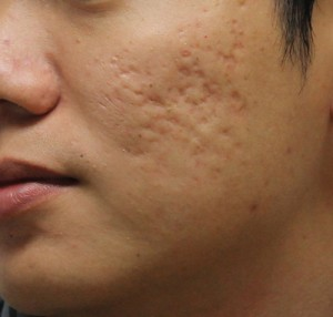 Cách trị sẹo lõm lâu năm được các chuyên gia khuyên dùng