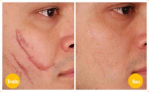 Chia sẻ cách trị sẹo lồi ở môi hiệu quả nhất hiện nay 4